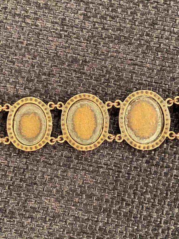 Rückseite des Armbands